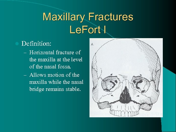 Maxillary Fractures Le. Fort I l Definition: – Horizontal fracture of the maxilla at