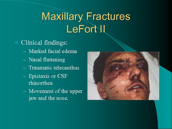 Maxillary Fractures Le. Fort II l Clinical findings: – Marked facial edema – Nasal