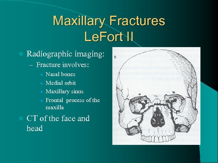 Maxillary Fractures Le. Fort II l Radiographic imaging: – Fracture involves: l l l