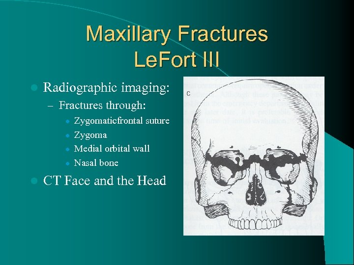 Maxillary Fractures Le. Fort III l Radiographic imaging: – Fractures through: l l l