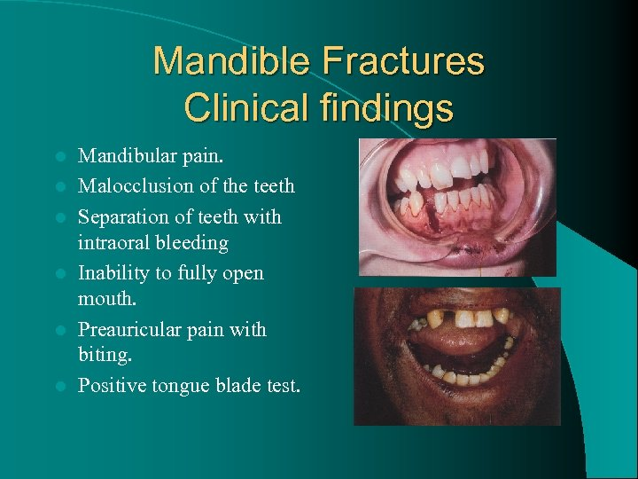 Mandible Fractures Clinical findings l l l Mandibular pain. Malocclusion of the teeth Separation