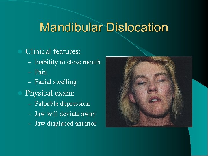 Mandibular Dislocation l Clinical features: – Inability to close mouth – Pain – Facial