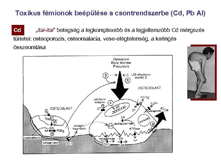 """Toxikus fémionok beépülése a csontrendszerbe (Cd, Pb Al) Cd Cd """"itai-itai"""" betegség a legkomplexebb"""