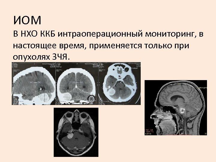 ИОМ В НХО ККБ интраоперационный мониторинг, в настоящее время, применяется только при опухолях ЗЧЯ.