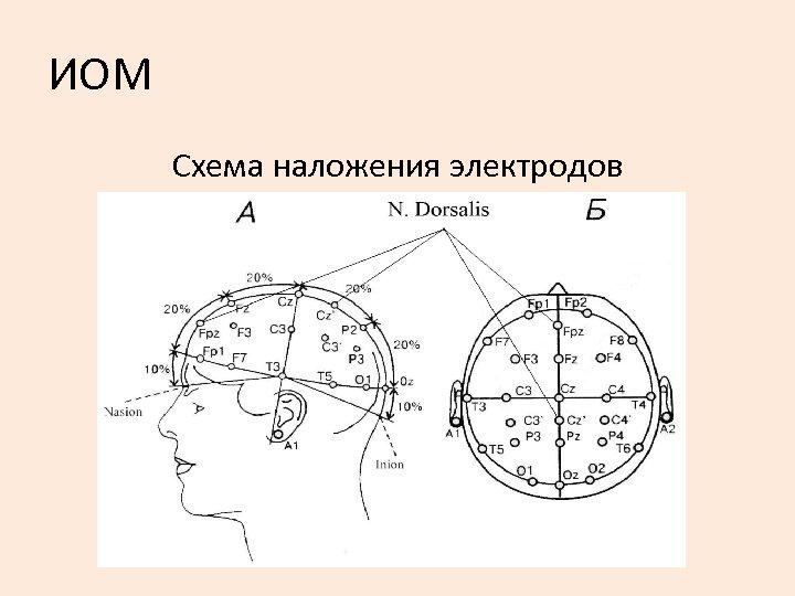 ИОМ Схема наложения электродов