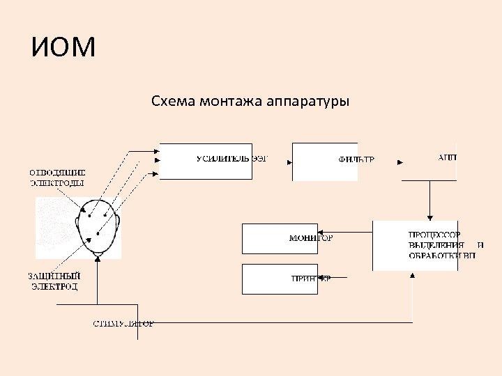 ИОМ Схема монтажа аппаратуры