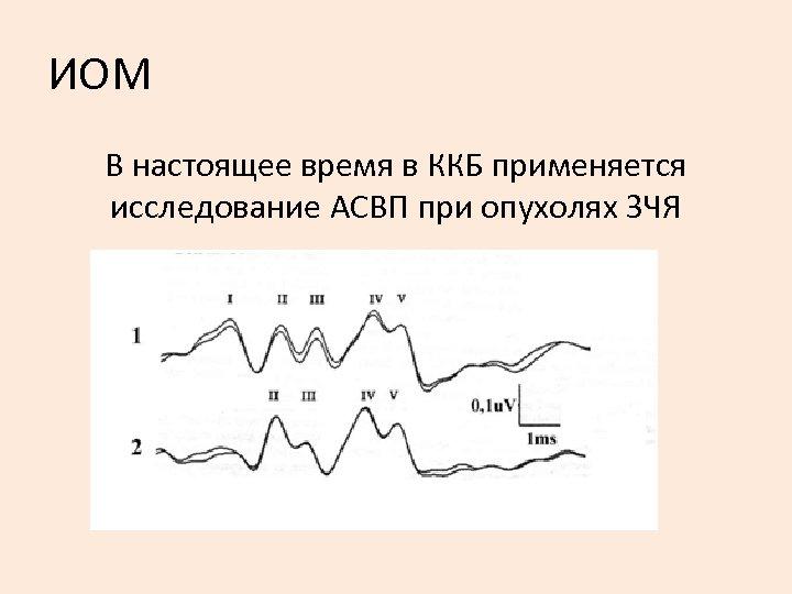 ИОМ В настоящее время в ККБ применяется исследование АСВП при опухолях ЗЧЯ