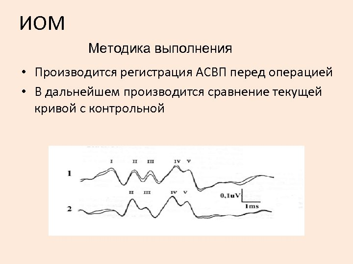 ИОМ Методика выполнения • Производится регистрация АСВП перед операцией • В дальнейшем производится сравнение