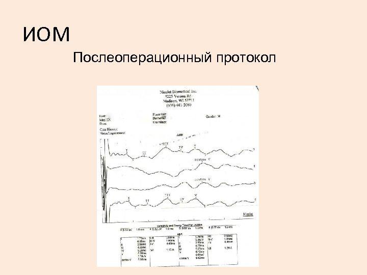 ИОМ Послеоперационный протокол