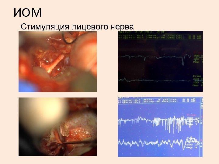 ИОМ Стимуляция лицевого нерва