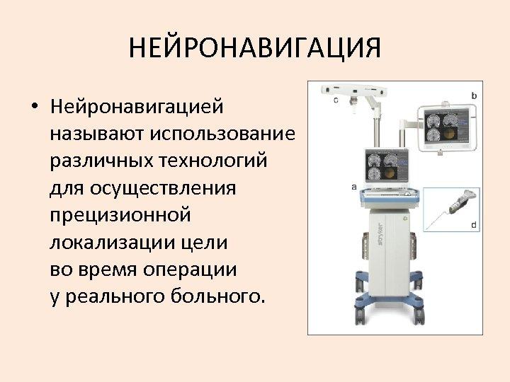 НЕЙРОНАВИГАЦИЯ • Нейронавигацией называют использование различных технологий для осуществления прецизионной локализации цели во время
