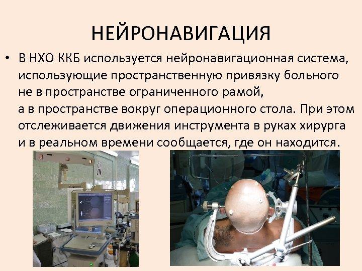 НЕЙРОНАВИГАЦИЯ • В НХО ККБ используется нейронавигационная система, использующие пространственную привязку больного не в