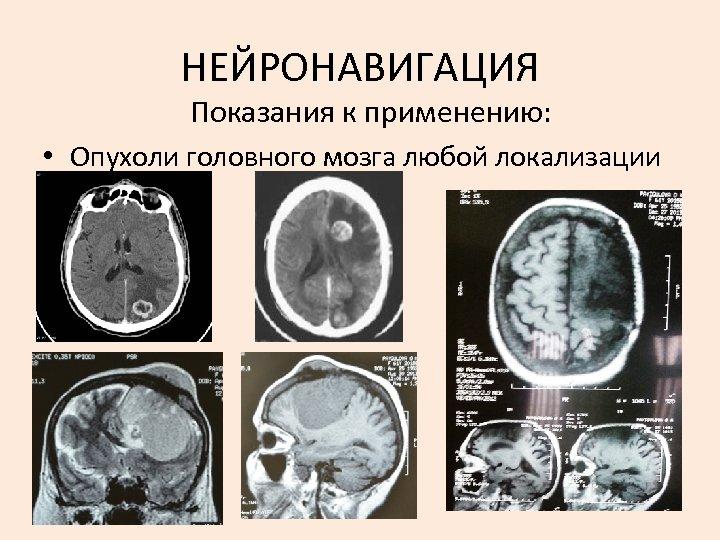 НЕЙРОНАВИГАЦИЯ Показания к применению: • Опухоли головного мозга любой локализации