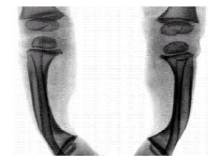 Рентгенологик узгаришлар • остеопороз, • метафизларда кенгайиш, • тахминий охакланиш сохаси ноаниклик ва ювилиб