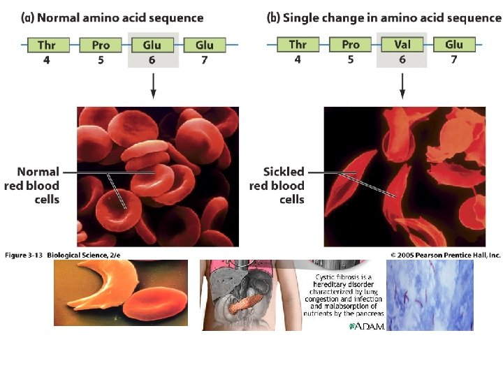 Многие распространенные наследственные болезни поддерживаются в популяци благодаря преимуществу гетерозигот. Возможно, ген муковисцидоза распространился