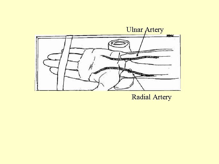 Ulnar Artery Radial Artery