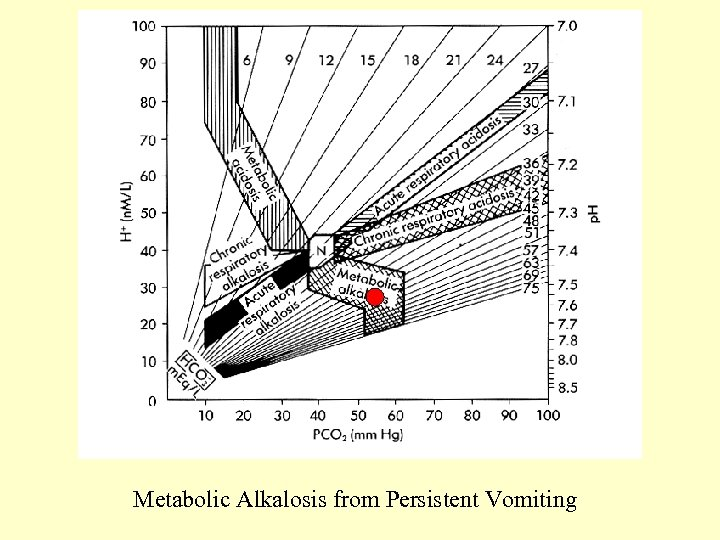 Metabolic Alkalosis from Persistent Vomiting
