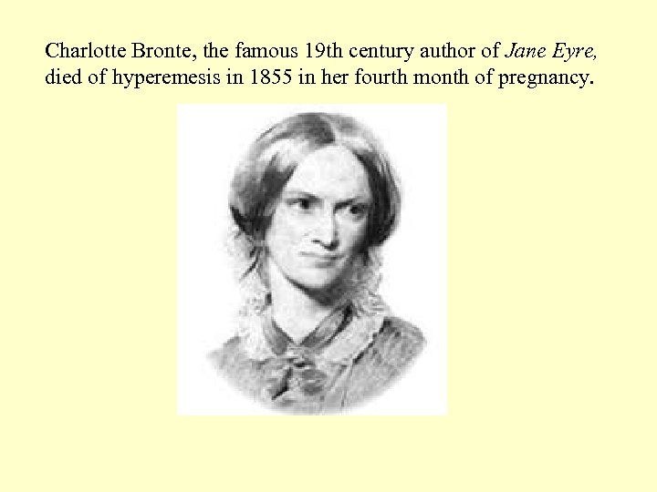 Charlotte Bronte, the famous 19 th century author of Jane Eyre, died of hyperemesis