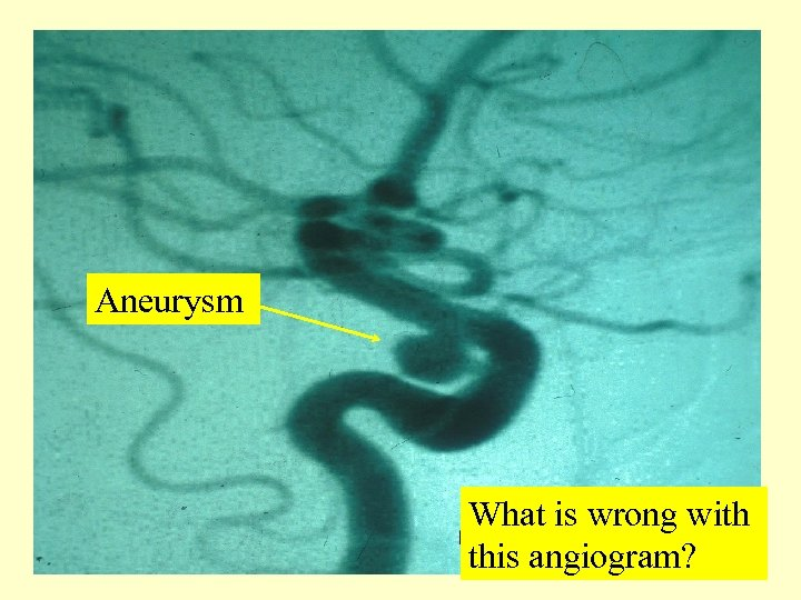 Aneurysm What is wrong with this angiogram?