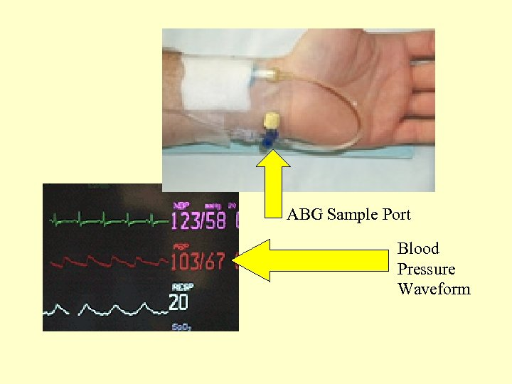 ABG Sample Port Blood Pressure Waveform