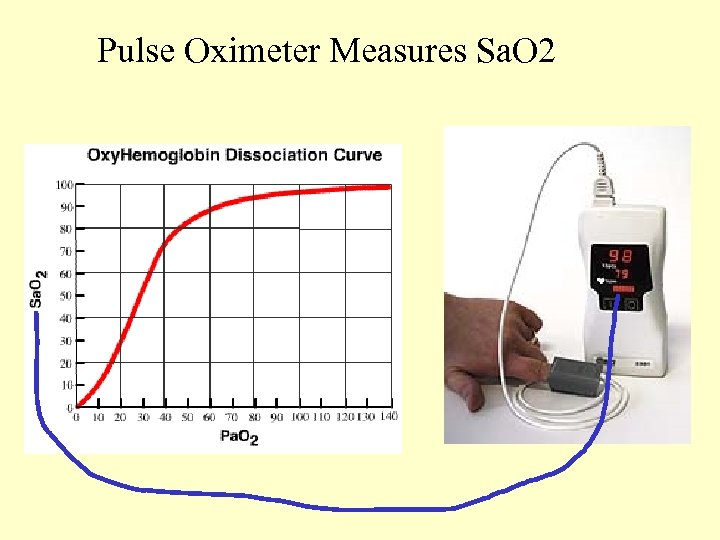 Pulse Oximeter Measures Sa. O 2