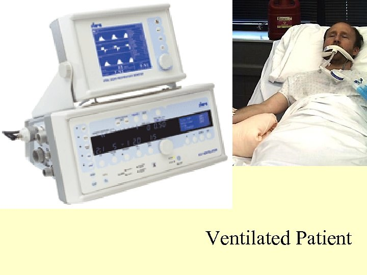 Ventilated Patient