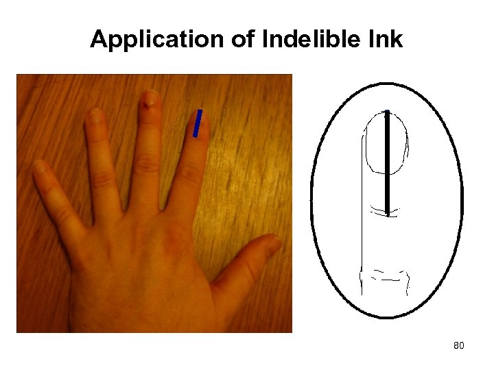 Application of Indelible Ink 80