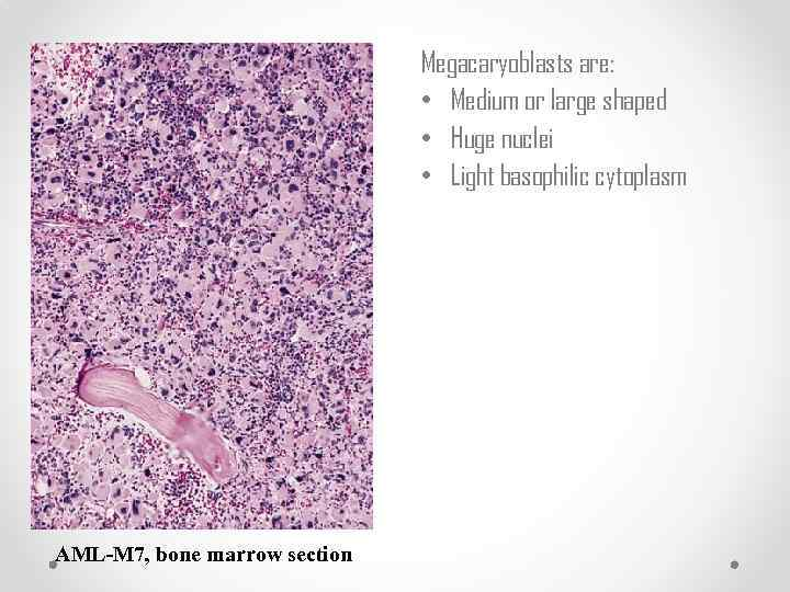 anatomy acute myeloid leukemia Acute myeloid leukemia starts in the bone marrow this is the soft inner parts of bones with acute types of leukemia such as aml, bone marrow cells don't mature the way they're supposed to.
