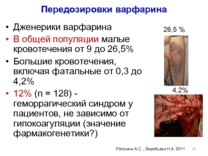 Передозировки варфарина • Дженерики варфарина • В общей популяции малые кровотечения от 9 до