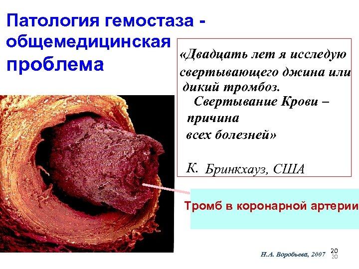 Патология гемостаза общемедицинская проблема «Двадцать лет я исследую свертывающего джина или дикий тромбоз. Свертывание