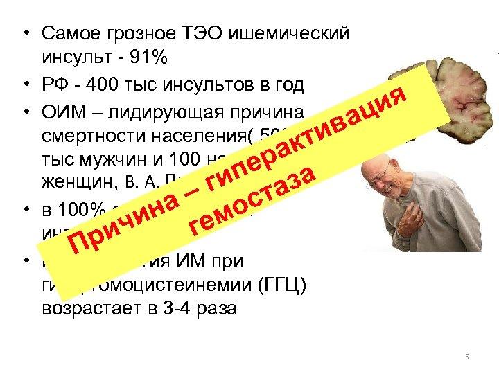 • Самое грозное ТЭО ишемический инсульт - 91% • РФ - 400 тыс