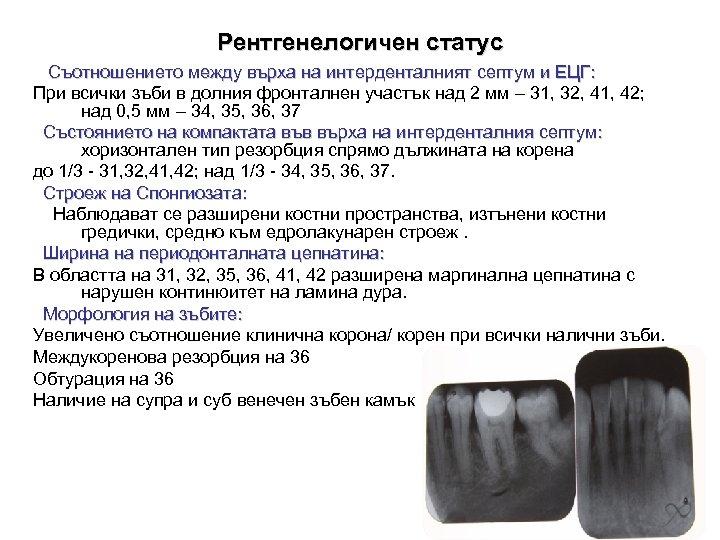 Рентгенелогичен статус Съотношението между върха на интерденталният септум и ЕЦГ: При всички зъби в