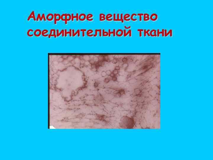 Аморфное вещество соединительной ткани