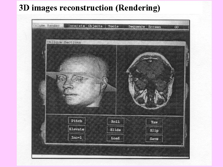 3 D images reconstruction (Rendering)