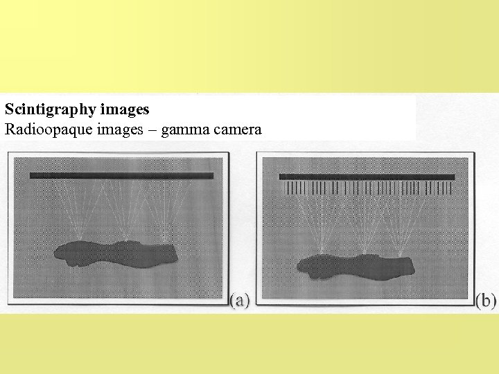 Scintigraphy images Radioopaque images – gamma camera