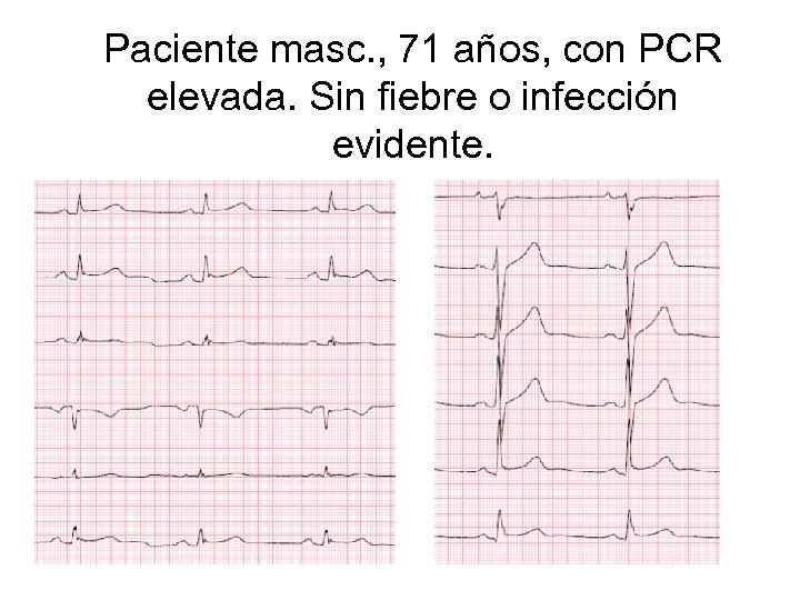 Paciente masc. , 71 años, con PCR elevada. Sin fiebre o infección evidente.