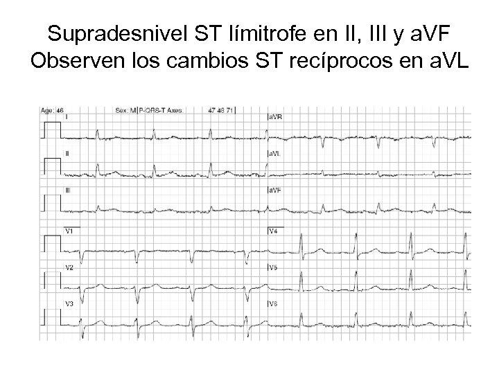 Supradesnivel ST límitrofe en II, III y a. VF Observen los cambios ST recíprocos