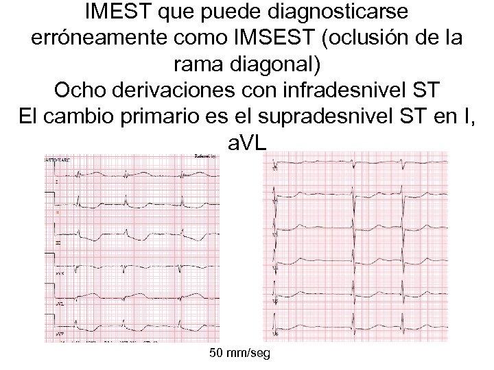 IMEST que puede diagnosticarse erróneamente como IMSEST (oclusión de la rama diagonal) Ocho derivaciones