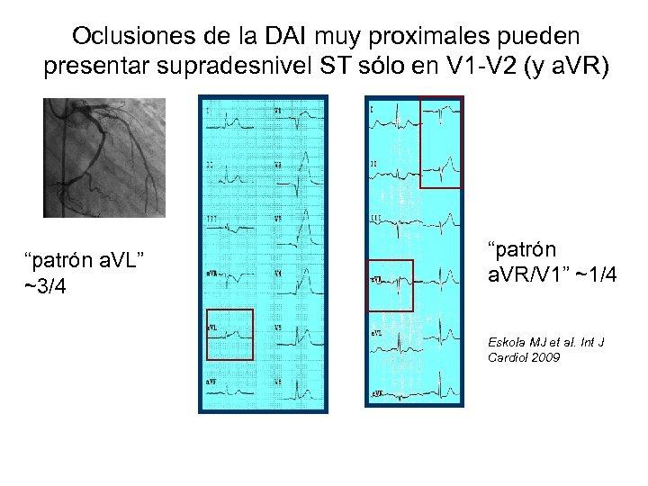 Oclusiones de la DAI muy proximales pueden presentar supradesnivel ST sólo en V 1