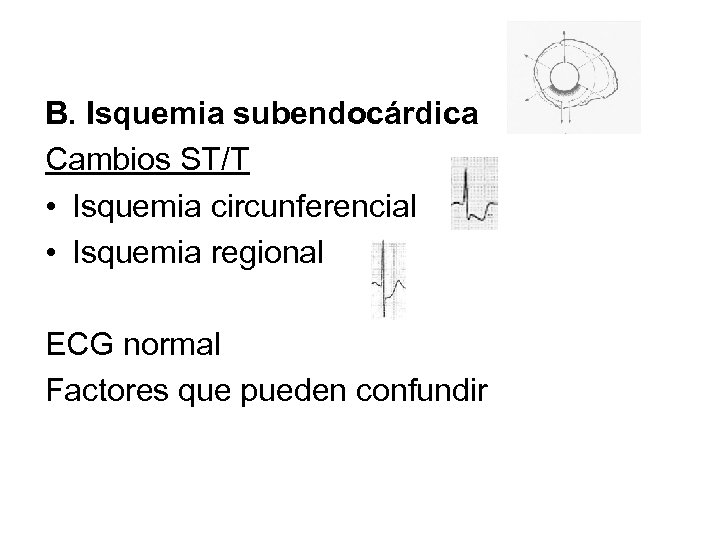 B. Isquemia subendocárdica Cambios ST/T • Isquemia circunferencial • Isquemia regional ECG normal Factores