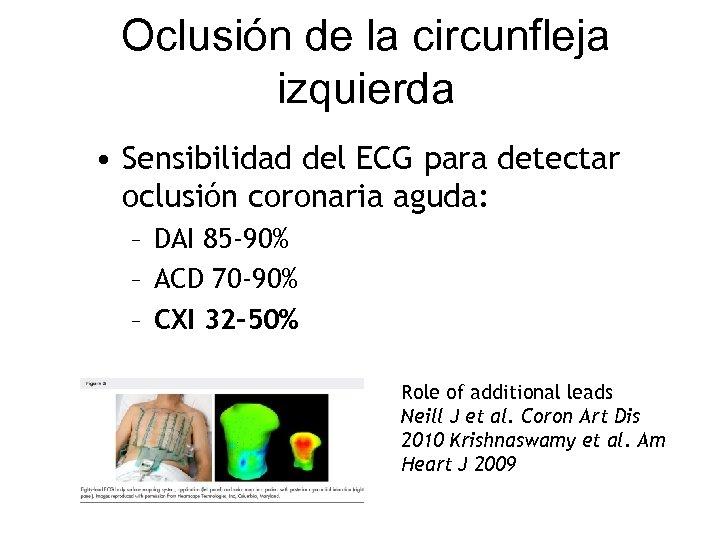 Oclusión de la circunfleja izquierda • Sensibilidad del ECG para detectar oclusión coronaria aguda: