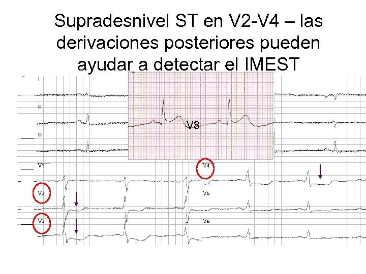Supradesnivel ST en V 2 -V 4 – las derivaciones posteriores pueden ayudar a