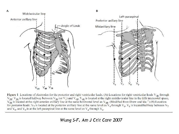 Wung S-F. Am J Crit Care 2007