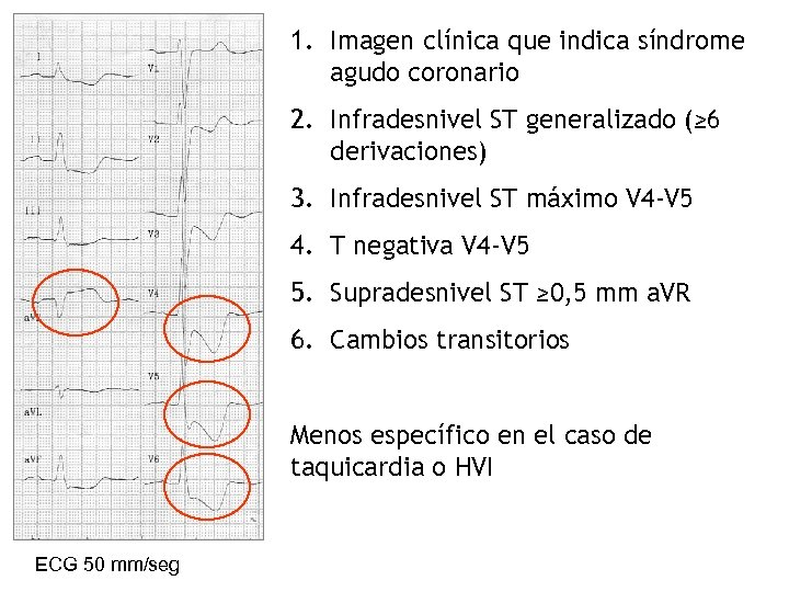 1. Imagen clínica que indica síndrome agudo coronario 2. Infradesnivel ST generalizado (≥ 6