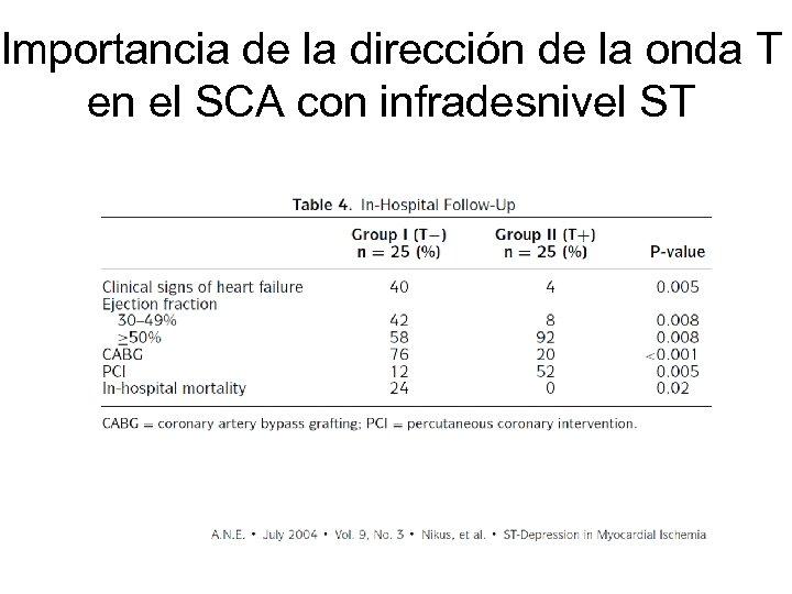 Importancia de la dirección de la onda T en el SCA con infradesnivel ST
