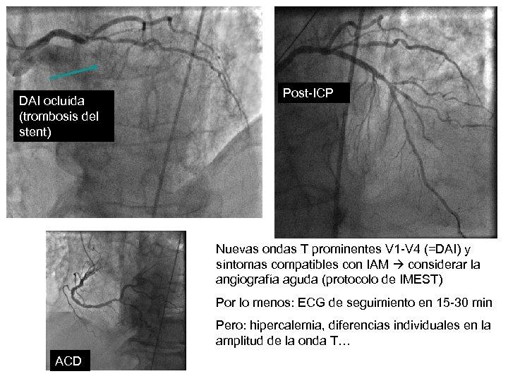 DAI ocluída (trombosis del stent) Post-ICP Nuevas ondas T prominentes V 1 -V 4
