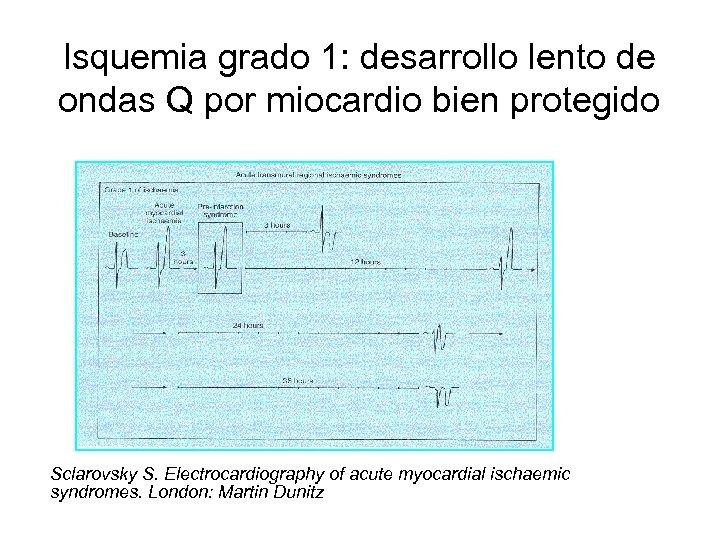 Isquemia grado 1: desarrollo lento de ondas Q por miocardio bien protegido Sclarovsky S.