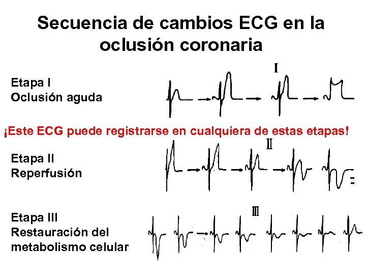 Secuencia de cambios ECG en la oclusión coronaria Etapa I Oclusión aguda ¡Este ECG