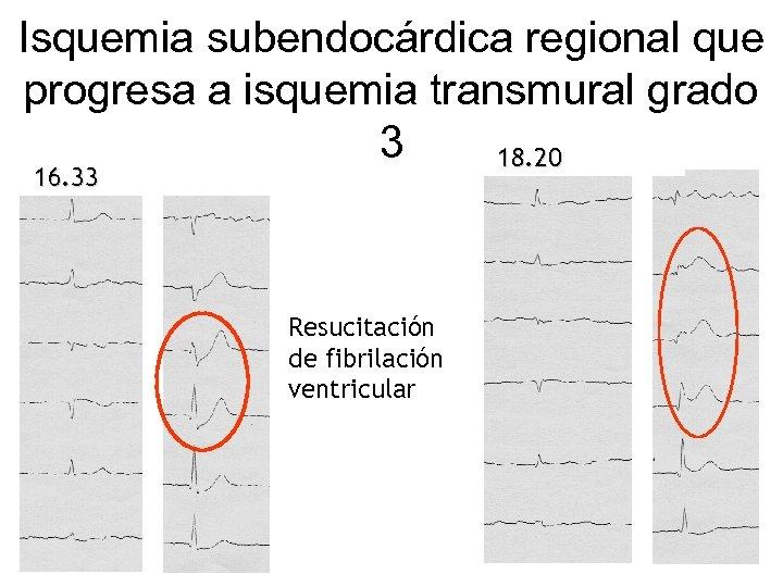 Isquemia subendocárdica regional que progresa a isquemia transmural grado 3 18. 20 16. 33