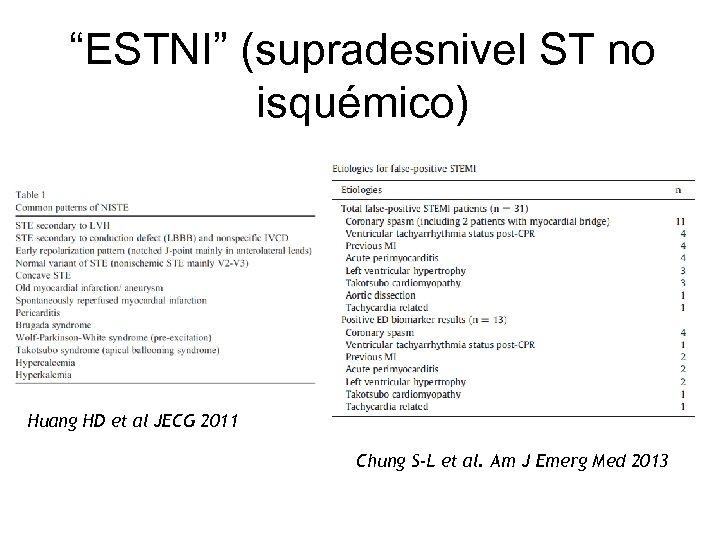 """ESTNI"" (supradesnivel ST no isquémico) Huang HD et al JECG 2011 Chung S-L et"
